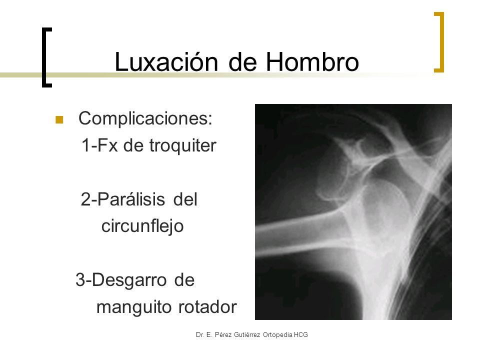 Dr. E. Pèrez Gutièrrez Ortopedia HCG Luxación de Hombro Complicaciones: 1-Fx de troquiter 2-Parálisis del circunflejo 3-Desgarro de manguito rotador