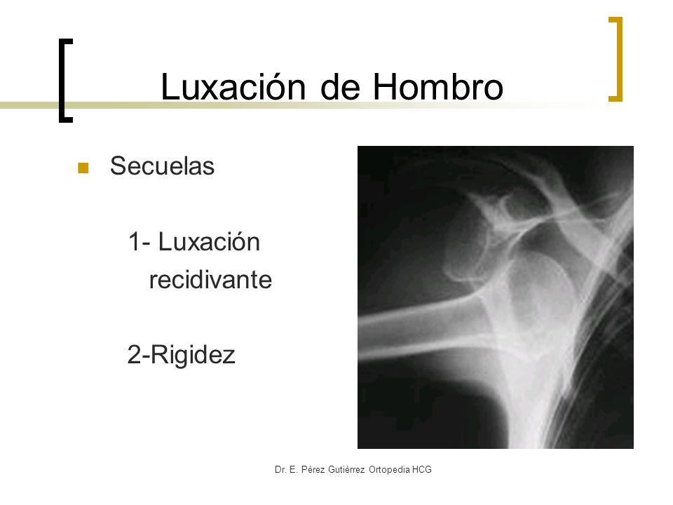 Dr. E. Pèrez Gutièrrez Ortopedia HCG Luxación de Hombro Secuelas 1- Luxación recidivante 2-Rigidez