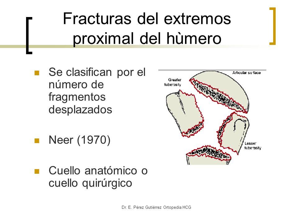 Dr. E. Pèrez Gutièrrez Ortopedia HCG Fracturas del extremos proximal del hùmero Se clasifican por el número de fragmentos desplazados Neer (1970) Cuel