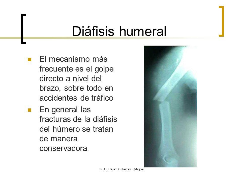 Dr. E. Pèrez Gutièrrez Ortopedia HCG Diáfisis humeral El mecanismo más frecuente es el golpe directo a nivel del brazo, sobre todo en accidentes de tr
