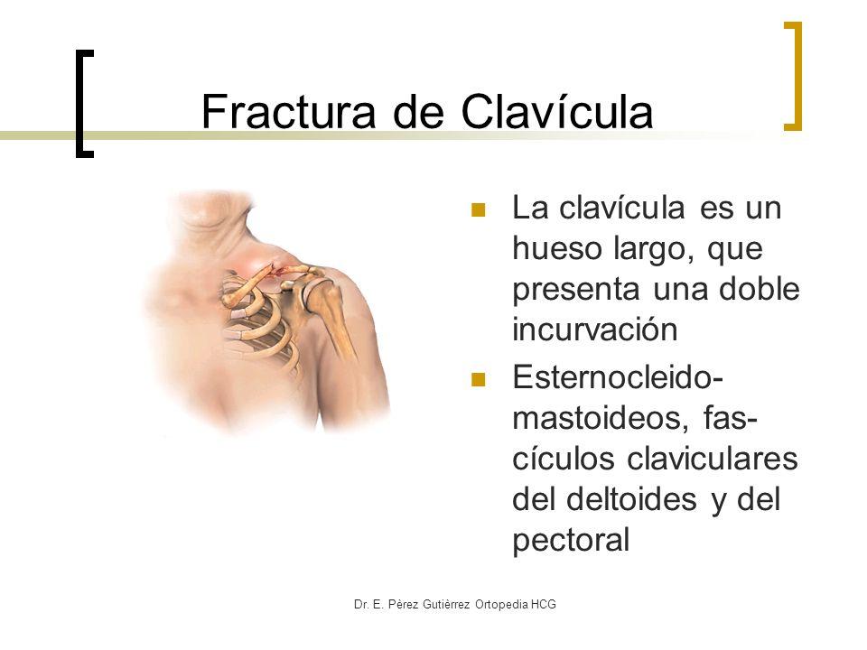 Dr. E. Pèrez Gutièrrez Ortopedia HCG Fractura de Clavícula La clavícula es un hueso largo, que presenta una doble incurvación Esternocleido- mastoideo