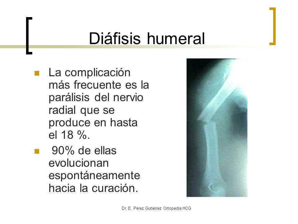 Dr. E. Pèrez Gutièrrez Ortopedia HCG Diáfisis humeral La complicación más frecuente es la parálisis del nervio radial que se produce en hasta el 18 %.