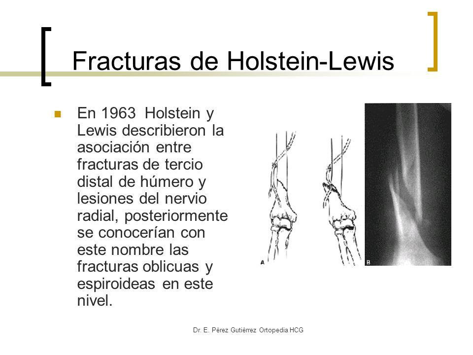 Dr. E. Pèrez Gutièrrez Ortopedia HCG Fracturas de Holstein-Lewis En 1963 Holstein y Lewis describieron la asociación entre fracturas de tercio distal