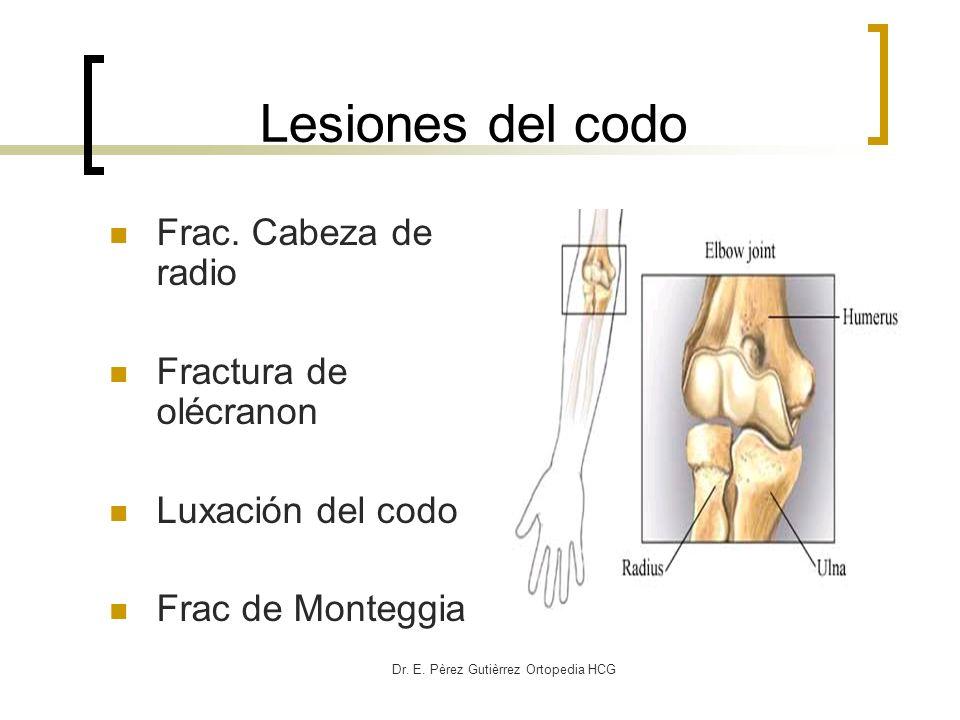 Dr. E. Pèrez Gutièrrez Ortopedia HCG Lesiones del codo Frac. Cabeza de radio Fractura de olécranon Luxación del codo Frac de Monteggia