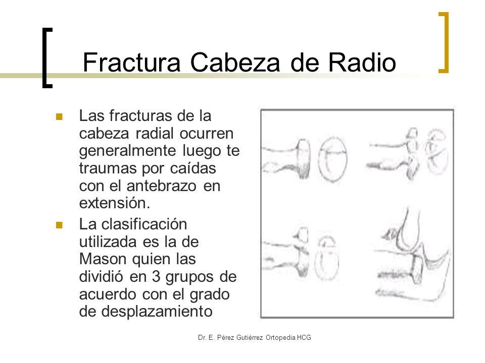 Dr. E. Pèrez Gutièrrez Ortopedia HCG Fractura Cabeza de Radio Las fracturas de la cabeza radial ocurren generalmente luego te traumas por caídas con e