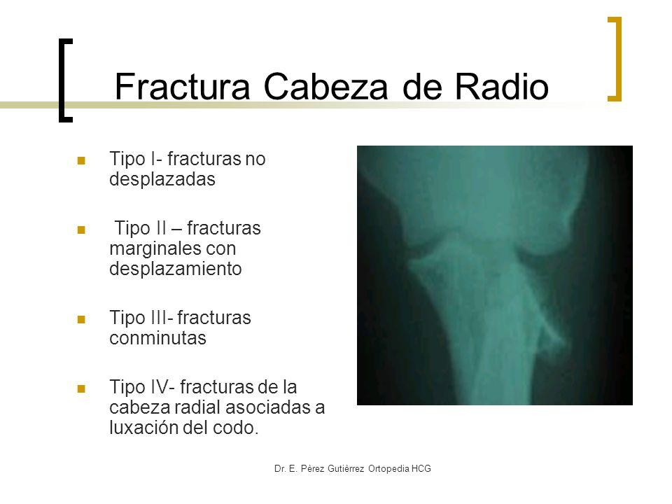 Dr. E. Pèrez Gutièrrez Ortopedia HCG Fractura Cabeza de Radio Tipo I- fracturas no desplazadas Tipo II – fracturas marginales con desplazamiento Tipo