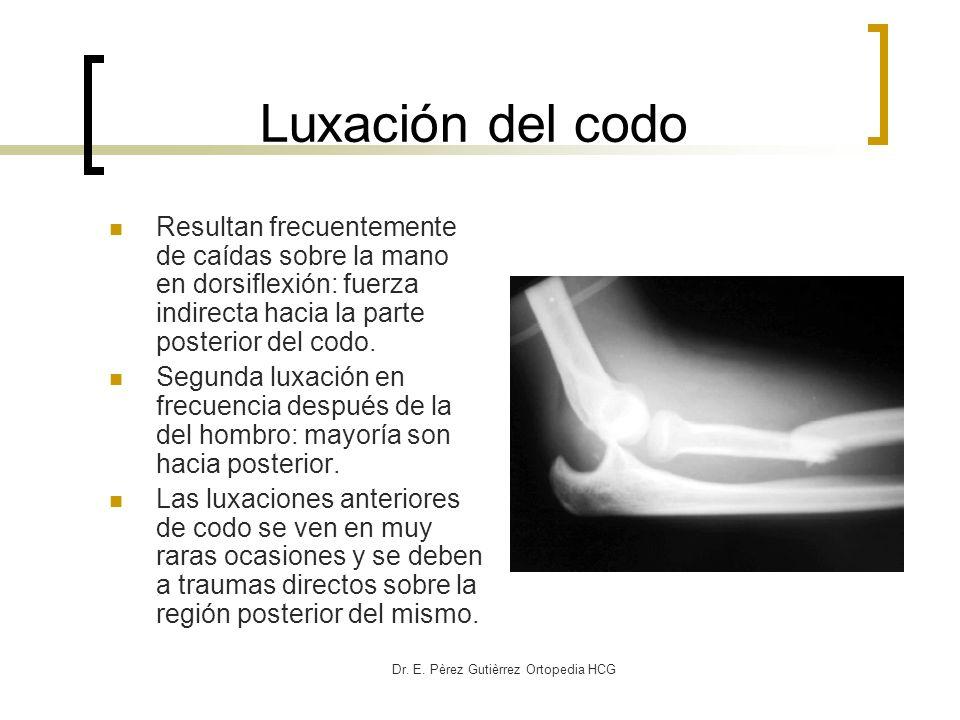 Dr. E. Pèrez Gutièrrez Ortopedia HCG Luxación del codo Resultan frecuentemente de caídas sobre la mano en dorsiflexión: fuerza indirecta hacia la part