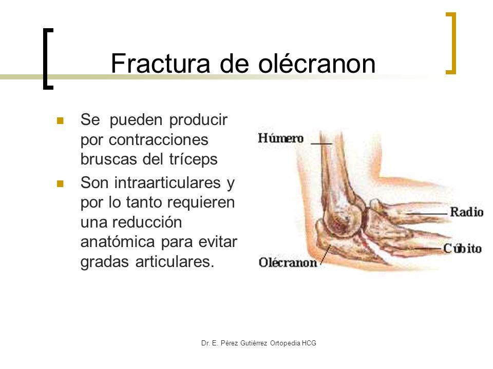 Dr. E. Pèrez Gutièrrez Ortopedia HCG Fractura de olécranon Se pueden producir por contracciones bruscas del tríceps Son intraarticulares y por lo tant