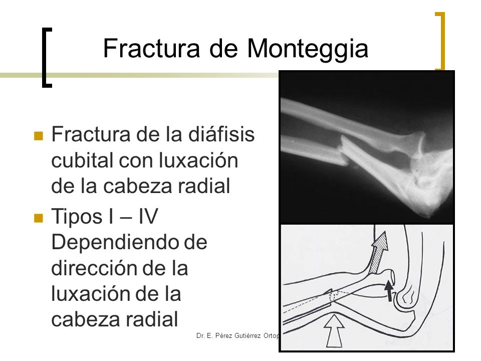 Dr. E. Pèrez Gutièrrez Ortopedia HCG Fractura de la diáfisis cubital con luxación de la cabeza radial Tipos I – IV Dependiendo de dirección de la luxa