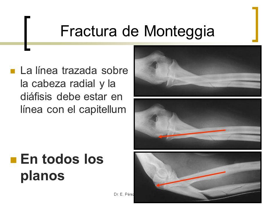 Dr. E. Pèrez Gutièrrez Ortopedia HCG La línea trazada sobre la cabeza radial y la diáfisis debe estar en línea con el capitellum En todos los planos F
