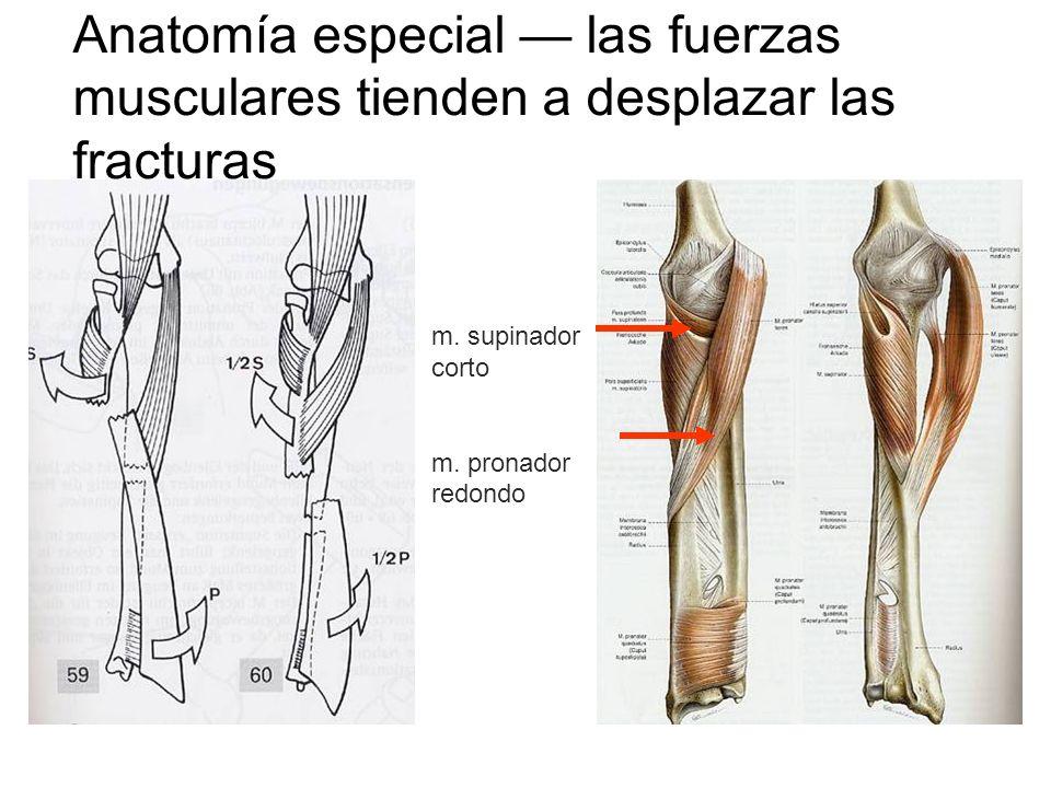 Anatomía especial las fuerzas musculares tienden a desplazar las fracturas m. supinador corto m. pronador redondo