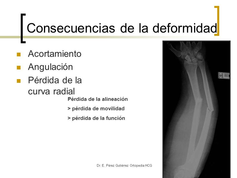 Dr. E. Pèrez Gutièrrez Ortopedia HCG Acortamiento Angulación Pérdida de la curva radial Pérdida de la alineación > pérdida de movilidad > pérdida de l