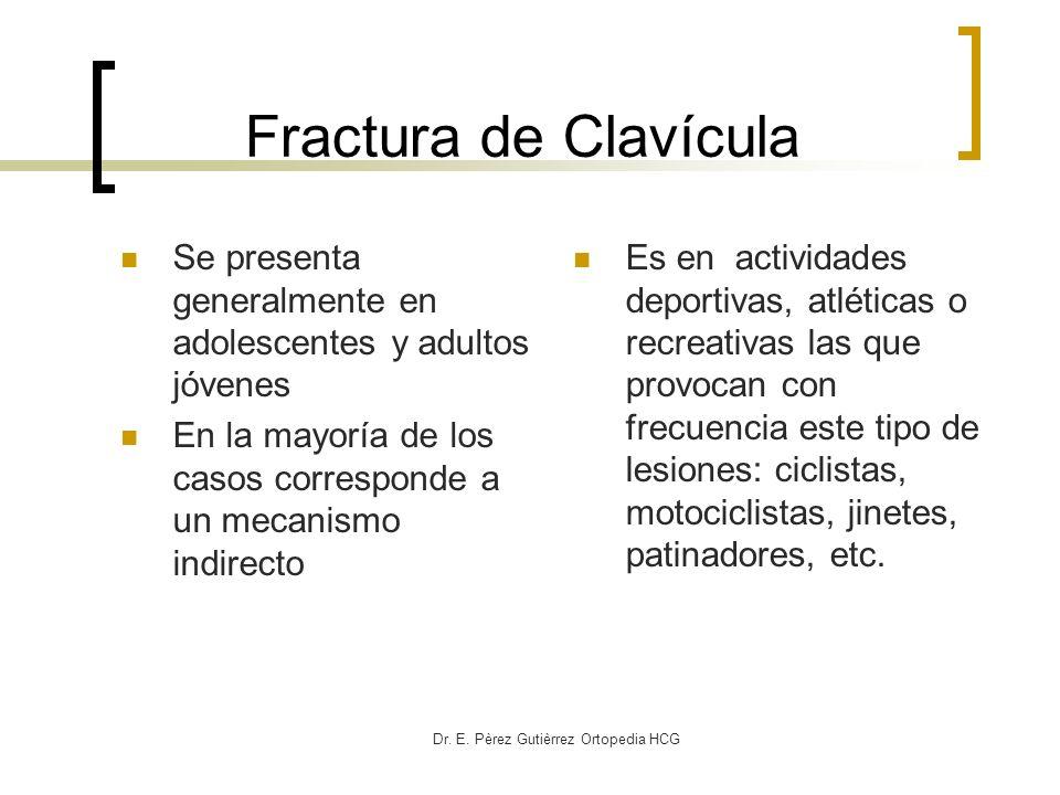 Dr. E. Pèrez Gutièrrez Ortopedia HCG Fractura de Clavícula Se presenta generalmente en adolescentes y adultos jóvenes En la mayoría de los casos corre