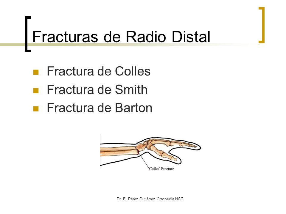 Dr. E. Pèrez Gutièrrez Ortopedia HCG Fracturas de Radio Distal Fractura de Colles Fractura de Smith Fractura de Barton