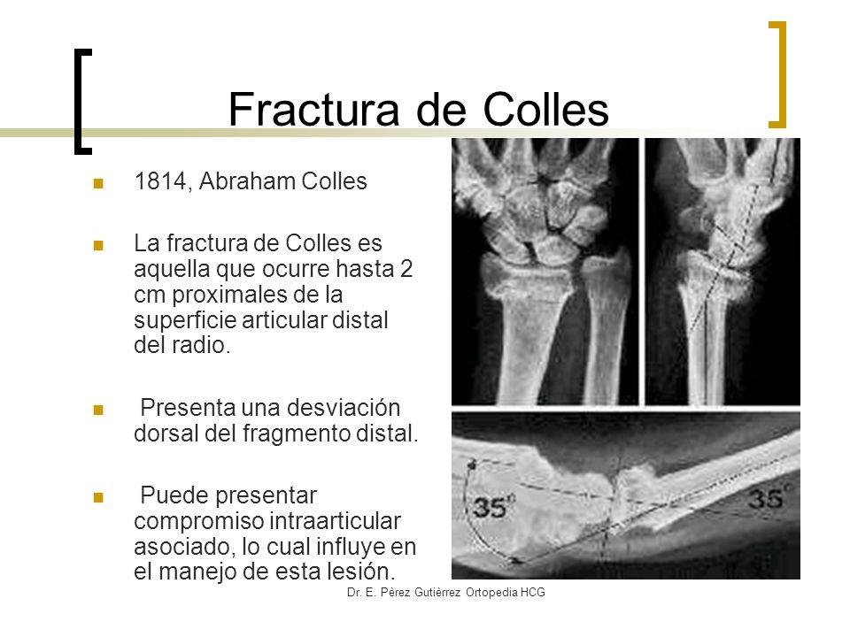 Dr. E. Pèrez Gutièrrez Ortopedia HCG Fractura de Colles 1814, Abraham Colles La fractura de Colles es aquella que ocurre hasta 2 cm proximales de la s