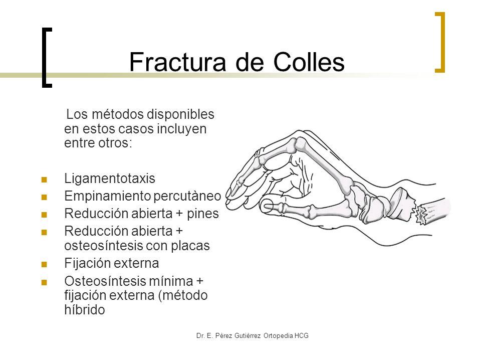Dr. E. Pèrez Gutièrrez Ortopedia HCG Fractura de Colles Los métodos disponibles en estos casos incluyen entre otros: Ligamentotaxis Empinamiento percu