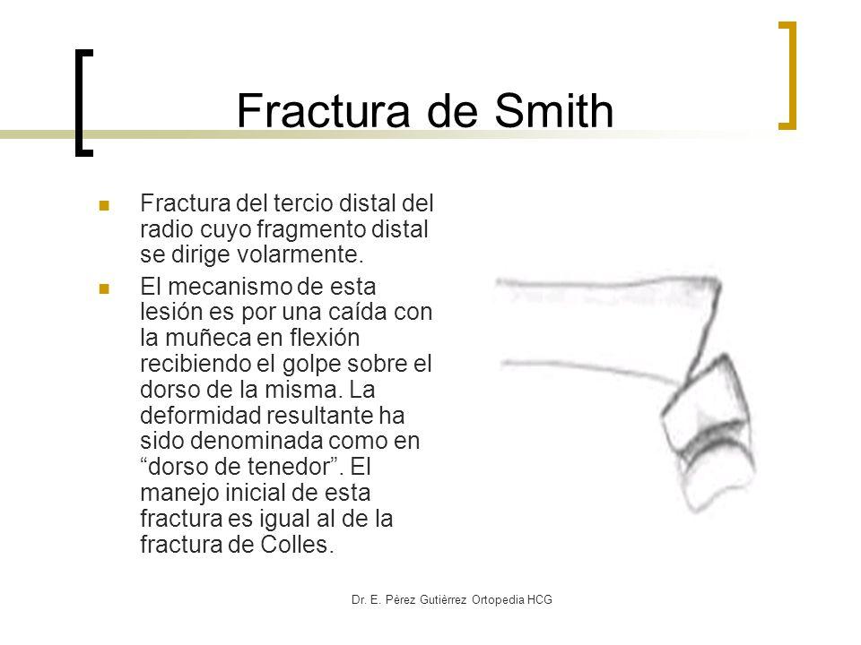 Dr. E. Pèrez Gutièrrez Ortopedia HCG Fractura de Smith Fractura del tercio distal del radio cuyo fragmento distal se dirige volarmente. El mecanismo d