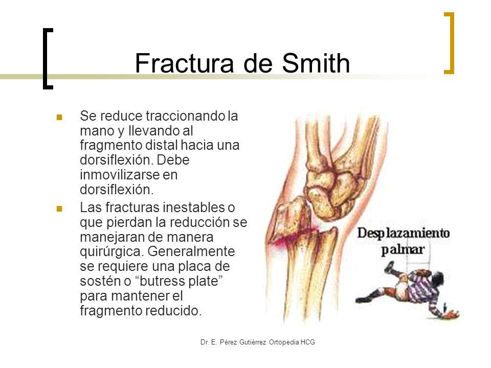 Dr. E. Pèrez Gutièrrez Ortopedia HCG Fractura de Smith Se reduce traccionando la mano y llevando al fragmento distal hacia una dorsiflexión. Debe inmo