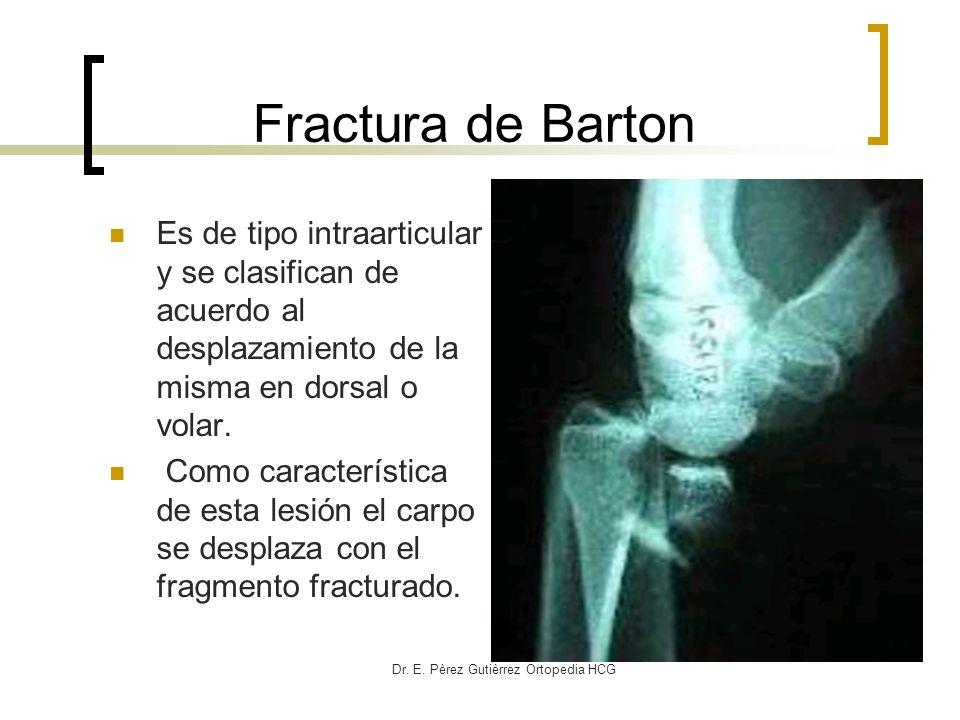 Dr. E. Pèrez Gutièrrez Ortopedia HCG Fractura de Barton Es de tipo intraarticular y se clasifican de acuerdo al desplazamiento de la misma en dorsal o