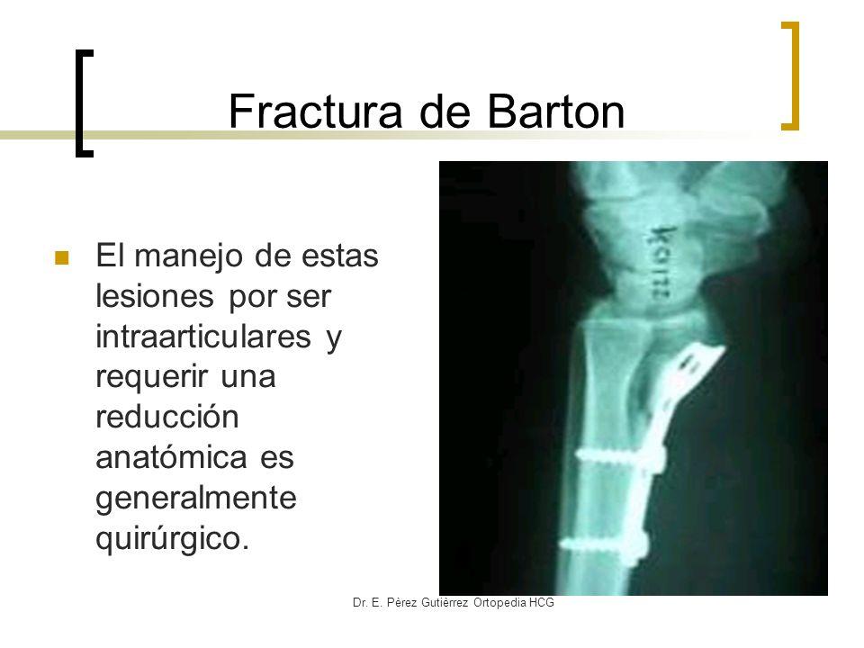 Dr. E. Pèrez Gutièrrez Ortopedia HCG Fractura de Barton El manejo de estas lesiones por ser intraarticulares y requerir una reducción anatómica es gen