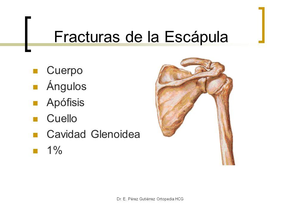 Dr. E. Pèrez Gutièrrez Ortopedia HCG Fracturas de la Escápula Cuerpo Ángulos Apófisis Cuello Cavidad Glenoidea 1%