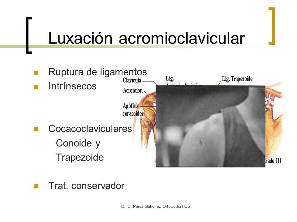 Dr. E. Pèrez Gutièrrez Ortopedia HCG Luxación acromioclavicular Ruptura de ligamentos Intrínsecos Cocacoclaviculares Conoide y Trapezoide Trat. conser