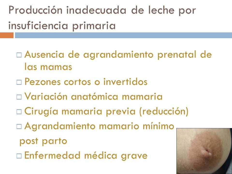 Producción inadecuada de leche por insuficiencia primaria Ausencia de agrandamiento prenatal de las mamas Pezones cortos o invertidos Variación anatóm
