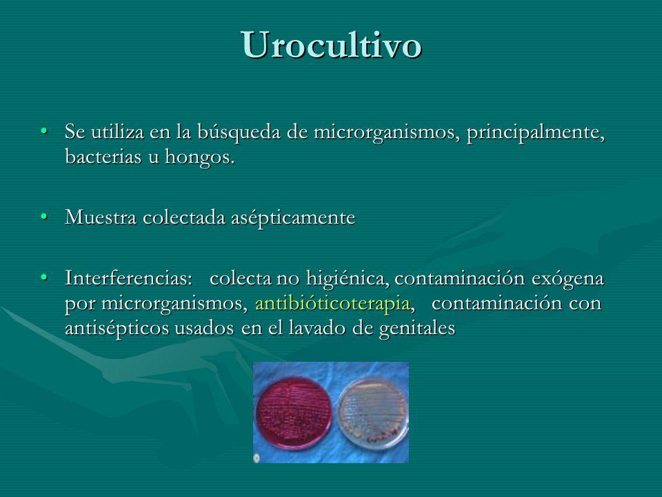 Urocultivo Se utiliza en la búsqueda de microrganismos, principalmente, bacterias u hongos.Se utiliza en la búsqueda de microrganismos, principalmente