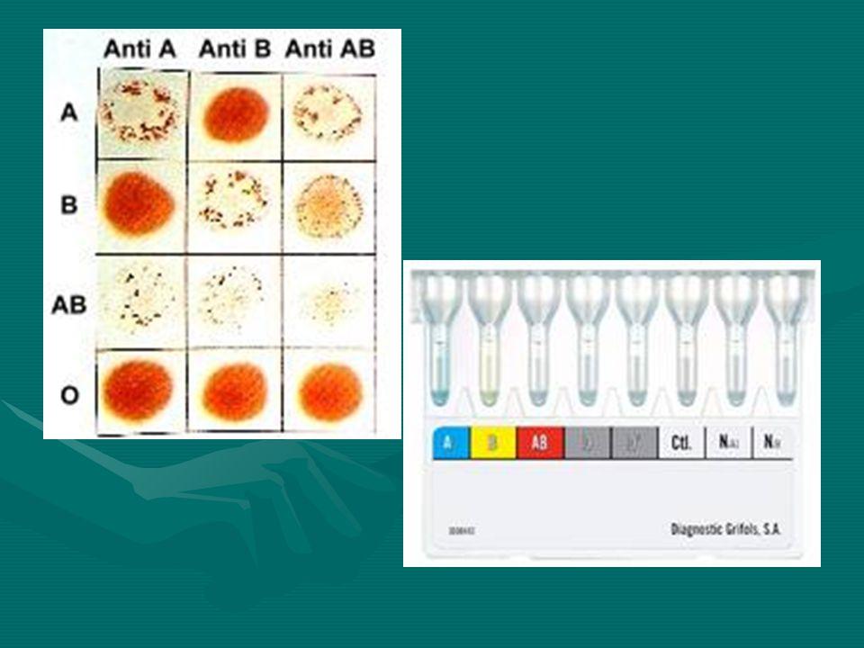 Sistema Rh Sistema complejo: Ag: D d C c E e, con 9 haplotipos, Ag solo presentes en eritrocitos, en membrana de GRSistema complejo: Ag: D d C c E e, con 9 haplotipos, Ag solo presentes en eritrocitos, en membrana de GR Importancia clínica: individuos Rh- son estimulados fácilmente a formar anti D, por transfusión con RhD+ o en embarazada ante feto RhD+.