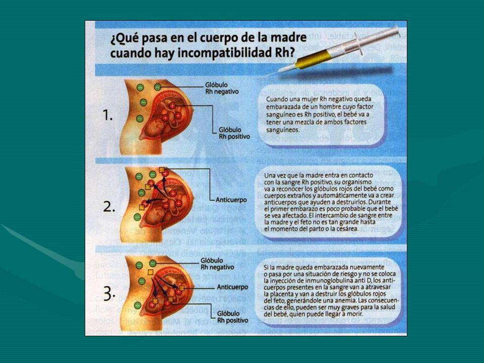 Manejo de CD en servicio de transfusión del hospital No incluir CD como parte de laNo incluir CD como parte de la rutina pretransfusional rutina pretransfusional Efectuarlo en pts sospechosos de hemólisis, especialmente si se sospecha inmunológica (en dx o monitoreo)Efectuarlo en pts sospechosos de hemólisis, especialmente si se sospecha inmunológica (en dx o monitoreo) No debe considerarse CD+ como sinónimo de AHAI ( puede verse en individuos sanos )No debe considerarse CD+ como sinónimo de AHAI ( puede verse en individuos sanos ) No debe descartarse AHAI por un CD –No debe descartarse AHAI por un CD – Debe plantearse la necesidad de investigar hemólisis inducida por drogasDebe plantearse la necesidad de investigar hemólisis inducida por drogas No debe efectuarse CD en todo neonato, excepto por historia o potencial presencia en madre de acNo debe efectuarse CD en todo neonato, excepto por historia o potencial presencia en madre de ac