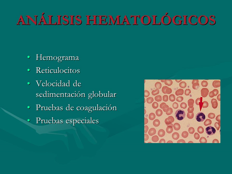 ANÁLISIS HEMATOLÓGICOS HemogramaHemograma ReticulocitosReticulocitos Velocidad de sedimentación globularVelocidad de sedimentación globular Pruebas de