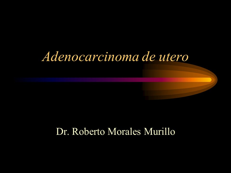 Adenocarcinoma de utero Dr. Roberto Morales Murillo