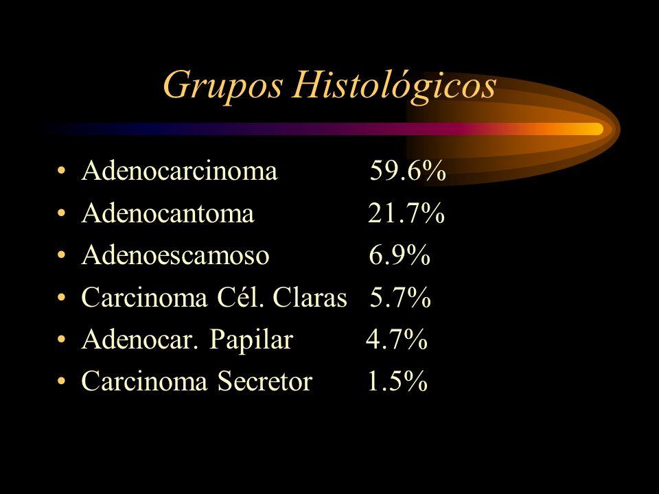 Grupos Histológicos Adenocarcinoma 59.6% Adenocantoma 21.7% Adenoescamoso 6.9% Carcinoma Cél. Claras 5.7% Adenocar. Papilar 4.7% Carcinoma Secretor 1.