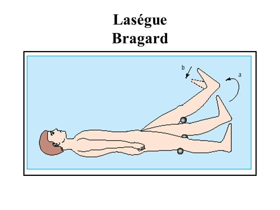 Laségue Bragard