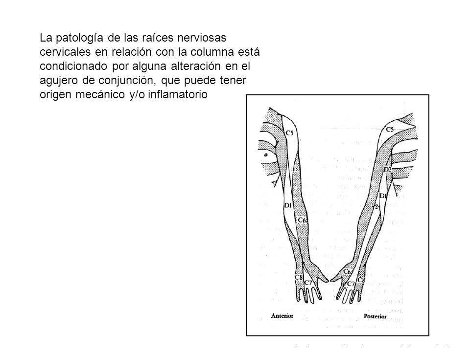 La patología de las raíces nerviosas cervicales en relación con la columna está condicionado por alguna alteración en el agujero de conjunción, que pu