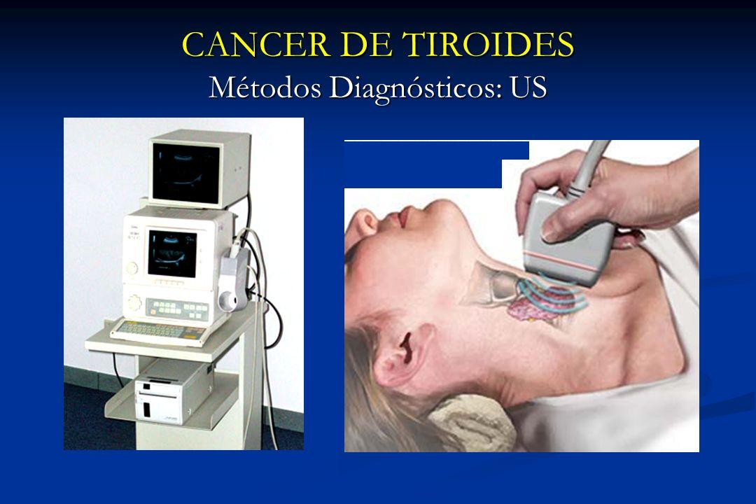 CANCER DE TIROIDES Métodos Diagnósticos: US