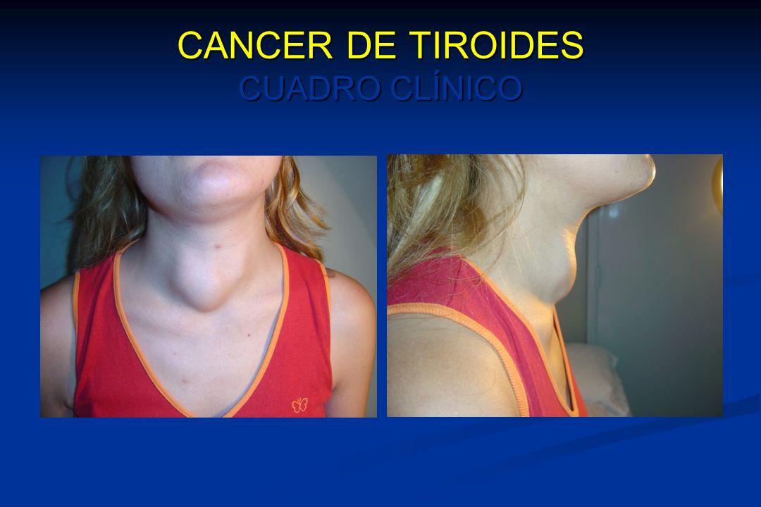 CANCER DE TIROIDES CUADRO CLÍNICO