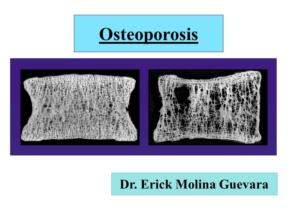 Osteoporosis Dr. Erick Molina Guevara