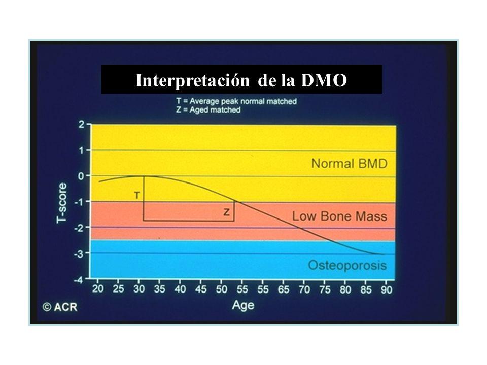 Interpretación de la DMO