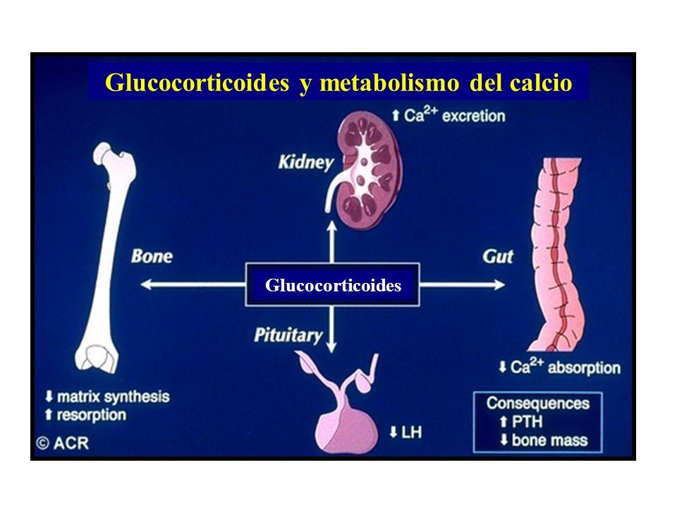 Glucocorticoides Glucocorticoides y metabolismo del calcio