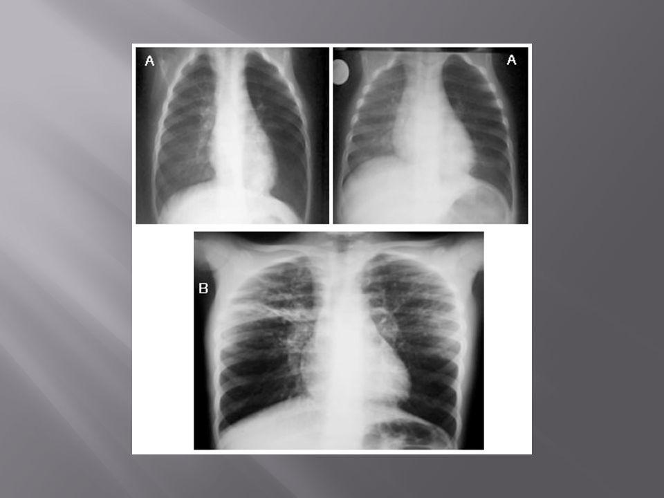 Dilataciones permanentes anormales delos bronquios, con esputo productivo.