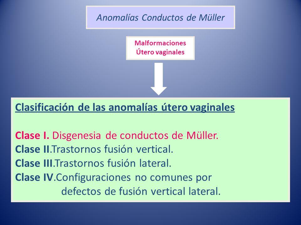 Anomalías Conductos de Müller Clasificación de las anomalías útero vaginales Clase I. Disgenesia de conductos de Müller. Clase II.Trastornos fusión ve