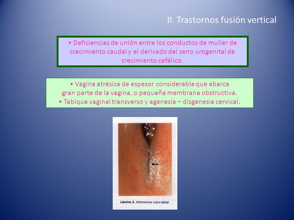 II. Trastornos fusión vertical Deficiencias de unión entre los conductos de muller de crecimiento caudal y el derivado del seno urogenital de crecimie