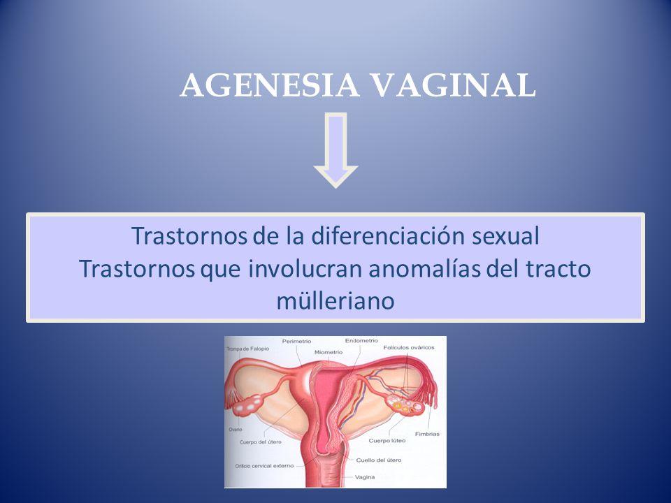 Trastornos de la diferenciación sexual Trastornos que involucran anomalías del tracto mülleriano AGENESIA VAGINAL