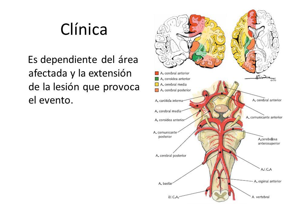 Clínica Es dependiente del área afectada y la extensión de la lesión que provoca el evento.