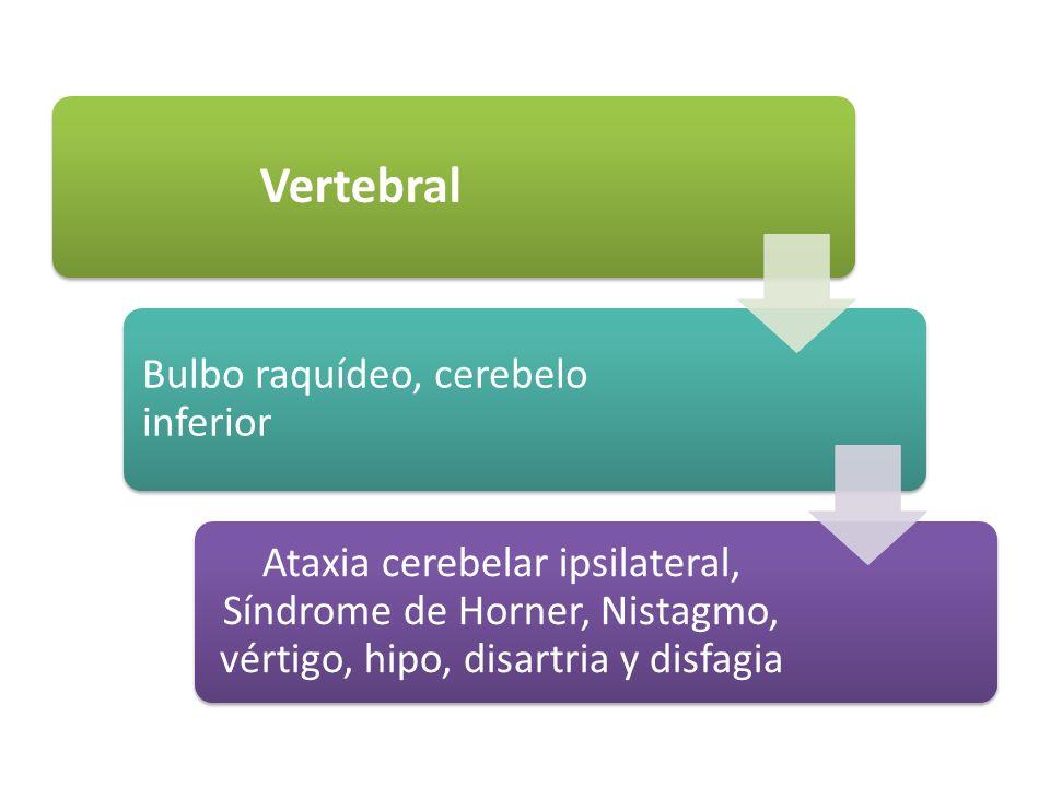 Vertebral Bulbo raquídeo, cerebelo inferior Ataxia cerebelar ipsilateral, Síndrome de Horner, Nistagmo, vértigo, hipo, disartria y disfagia