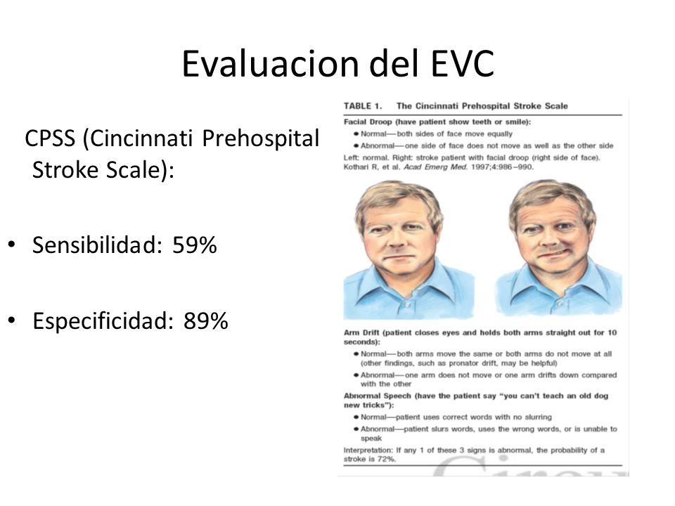 Evaluacion del EVC CPSS (Cincinnati Prehospital Stroke Scale): Sensibilidad: 59% Especificidad: 89%