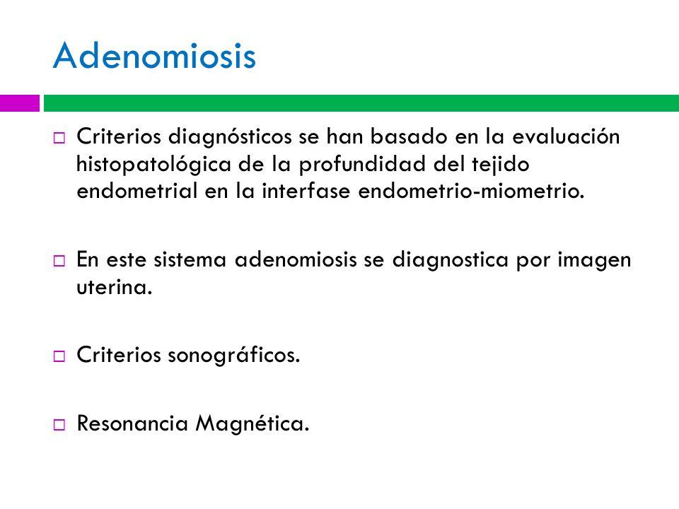 Adenomiosis Criterios diagnósticos se han basado en la evaluación histopatológica de la profundidad del tejido endometrial en la interfase endometrio-