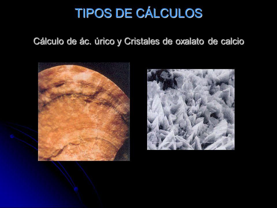 TIPOS DE CÁLCULOS Cálculo de ác. úrico y Cristales de oxalato de calcio