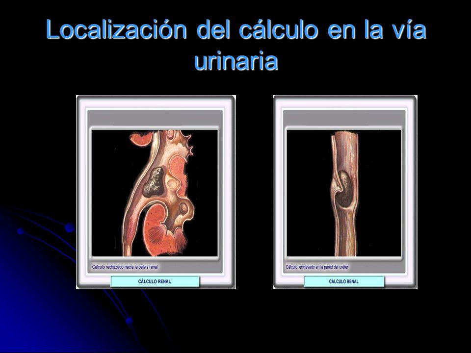Localización del cálculo en la vía urinaria